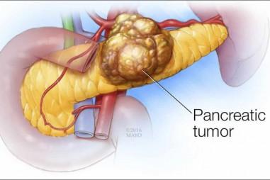 6 dấu hiệu của ung thư tuyến tụy: Căn bệnh cực nguy hiểm vì tỷ lệ sống sót chỉ còn 8,5%