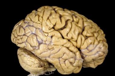 Tạo ra não người, khoa học đang 'đi quá giới hạn'?