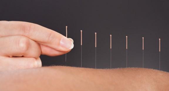 Châm cứu để giảm đau trong y học dựa trên bằng chứng