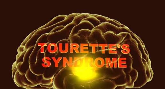 Hội chứng Tourette: Một góc nhìn mới