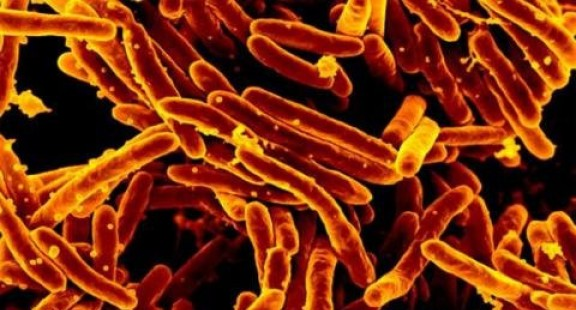 Thử nghiệm thành công vaccine mới có thể diệt vi khuẩn lao
