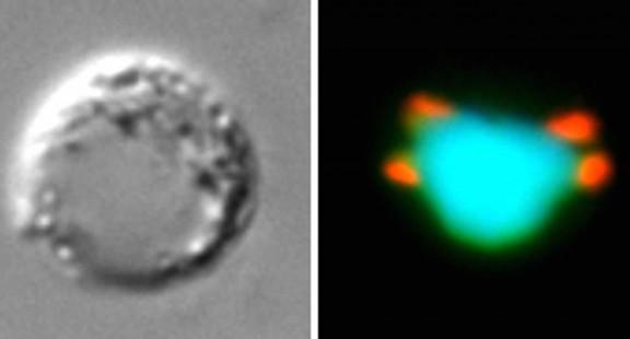 Nghiên cứu mới về sự nhân lên và phát triển của ký sinh trùng sốt rét