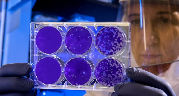 Mạng thần kinh nhân tạo tìm ra kháng sinh tiêu diệt được loại vi khuẩn mọi thuốc khác phải bó tay