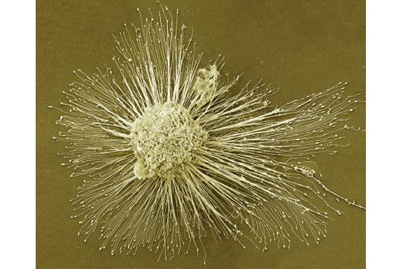 Hai ca bệnh tim đầu tiên được điều trị bằng tế bào gốc vạn năng