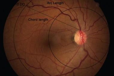 Thuốc nhỏ mắt mới có thể phòng ngừa nguyên nhân phổ biến gây mù lòa.