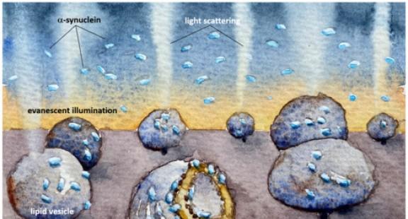 Phương pháp mới cho thấy protein của Parkinson làm hỏng màng tế bào