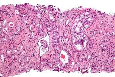 Đường có thể là chìa khóa để xét nghiệm ung thư tuyến tiền liệt sớm hơn, chính xác hơn