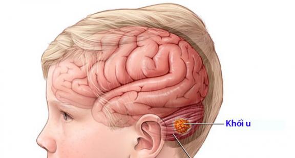 Có thể tái sử dụng thuốc điều trị ung thư bạch cầu Asen để điều trị ung thư não ở trẻ em