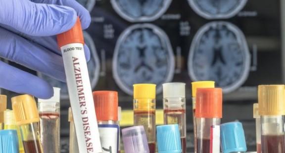 Xét nghiệm máu mới mang nhiều triển vọng trong chẩn đoán bệnh Alzheimer