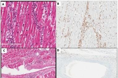 Viêm nội mạc tim và Hội chứng viêm đa hệ sau COVID-19