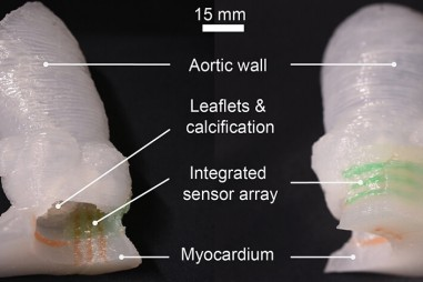 Mô hình van tim được in bằng công nghệ 3D