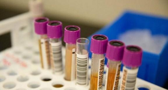 Phát hiện kháng thể  hóa hoàn toàn vô hiệu hóa CoVd-19