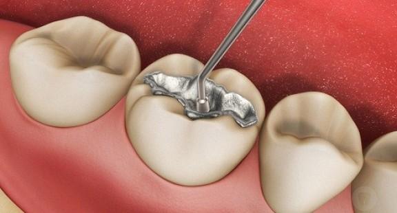 FDA cảnh báo nguy cơ từ chất trám răng có chứa thủy ngân