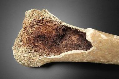 Vật liệu sinh học đột phá mới có thể khôi phục tất cả các yếu tố mô xương