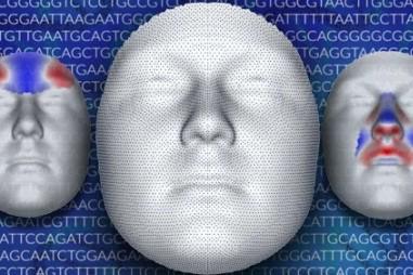 Cải thiện tình trạng sức khỏe nhờ nghiên cứu gene hình thành khuôn mặt