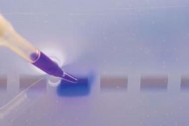 Hình ảnh protein và tự động hóa thẩm tách miễn dịch