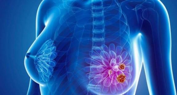 Cảm biến sinh học điện hóa vi lưu giúp chẩn đoán sớm ung thư vú