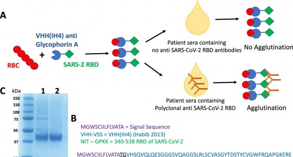 Phát triển bộ test tìm kháng thể chống lại coronavirus với giá rẻ