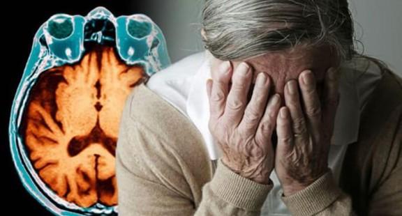 Thuốc thử nghiệm cho thấy tiềm năng chống lại bệnh Alzheimer
