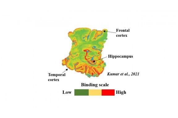 Chất chỉ thị PET mới có thể được dùng để phát hiện sớm bệnh Alzheimer