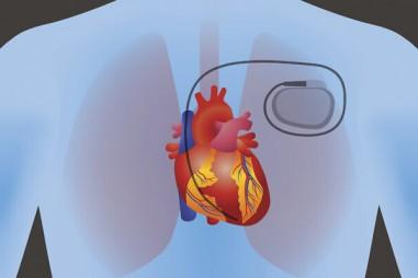 Vật liệu thông minh thúc đẩy việc sản xuất điện trong cơ thể người