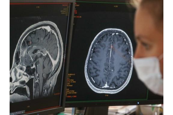 COVID gây hại cho não bộ ra sao