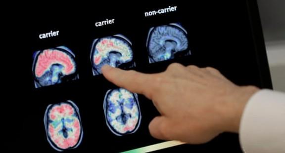 Thử nghiệm dùng trí tuệ nhân tạo chẩn đoán sớm chứng sa sút trí tuệ