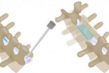 Thiết bị cấy ghép siêu mỏng điều trị đau lưng