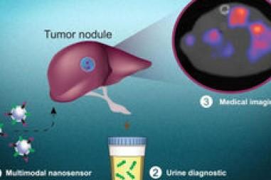 Sử dụng các hạt nano để phát hiện tế bào ung thư
